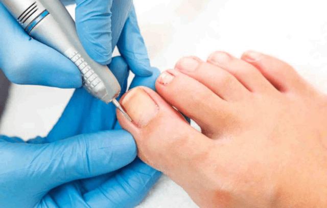 Pedichiura medicala